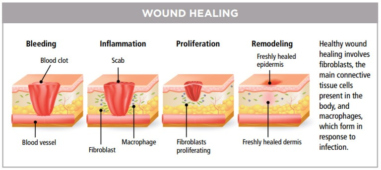 diagram of wound healing stages