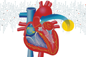 A remote heart monitoring system improves patients lives.